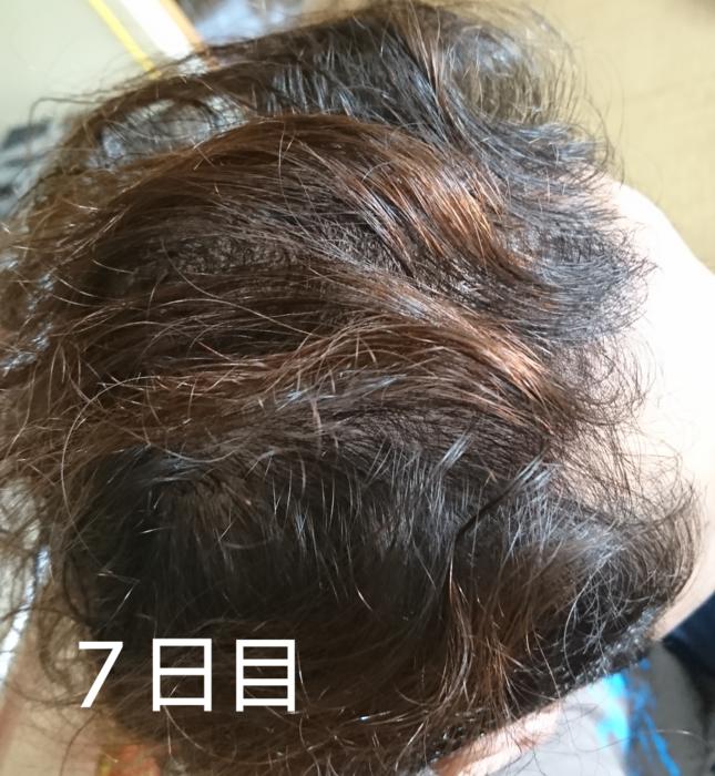 f:id:shibalog:20180914131645p:plain