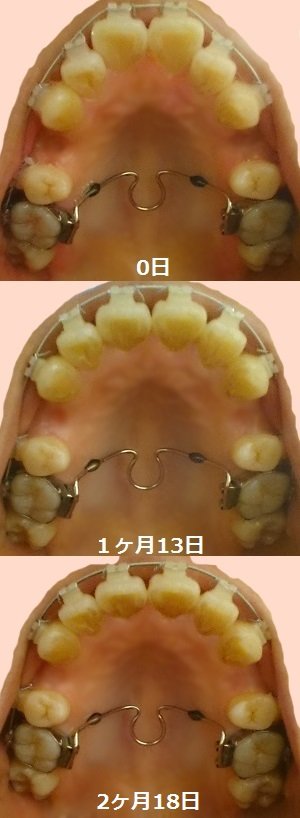 f:id:shika-kyousei-30:20180603225221j:plain