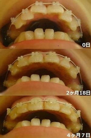 f:id:shika-kyousei-30:20180810200909j:plain