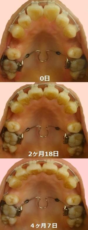 f:id:shika-kyousei-30:20180810200949j:plain