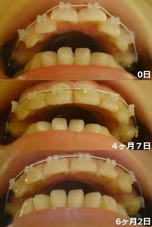 f:id:shika-kyousei-30:20180922204629j:plain