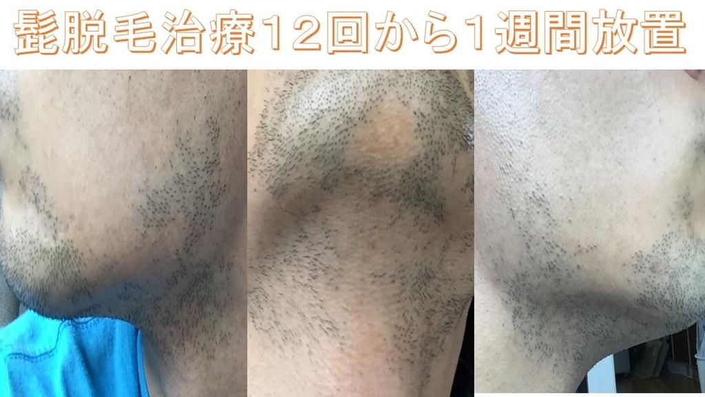 f:id:shikaku_biyou:20181124220300j:plain