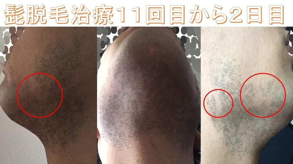 f:id:shikaku_biyou:20181124220324j:plain