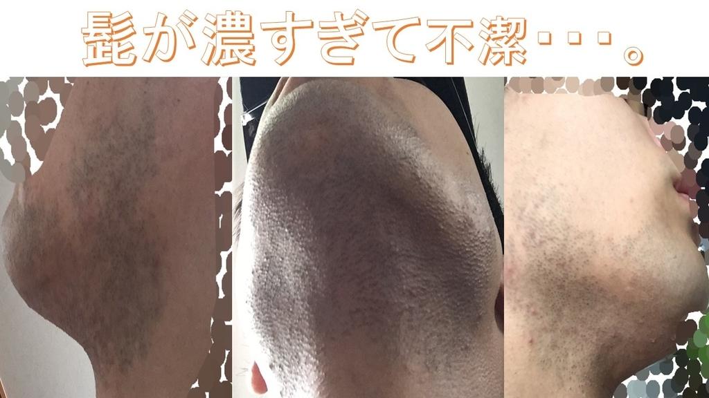 f:id:shikaku_biyou:20181124220658j:plain