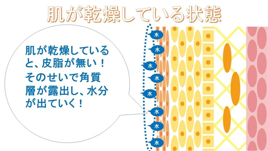 f:id:shikaku_biyou:20181205212639j:plain
