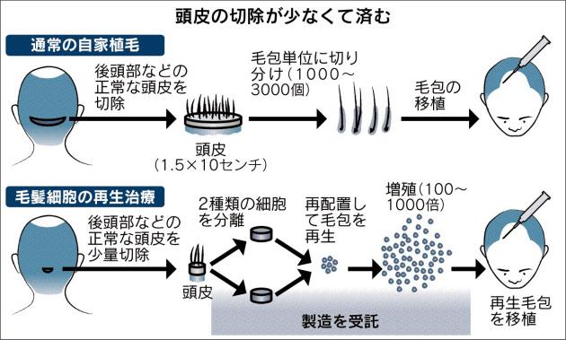 f:id:shimaneco21:20160713161930j:plain