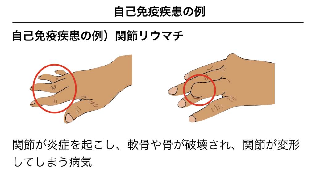 f:id:shimasensei:20180317151508j:plain