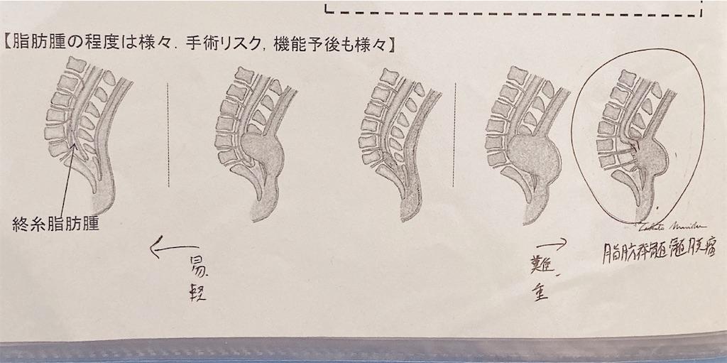 f:id:shinbamama-tenkin:20200702091605j:image