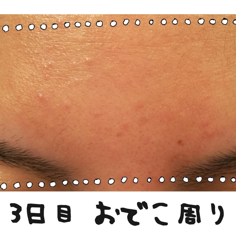 f:id:shinchouhikui_joshi:20170203140245j:plain
