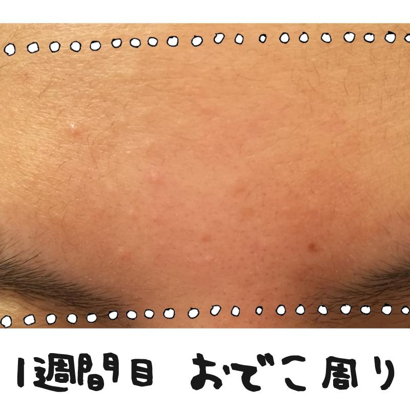 f:id:shinchouhikui_joshi:20170203140248j:plain