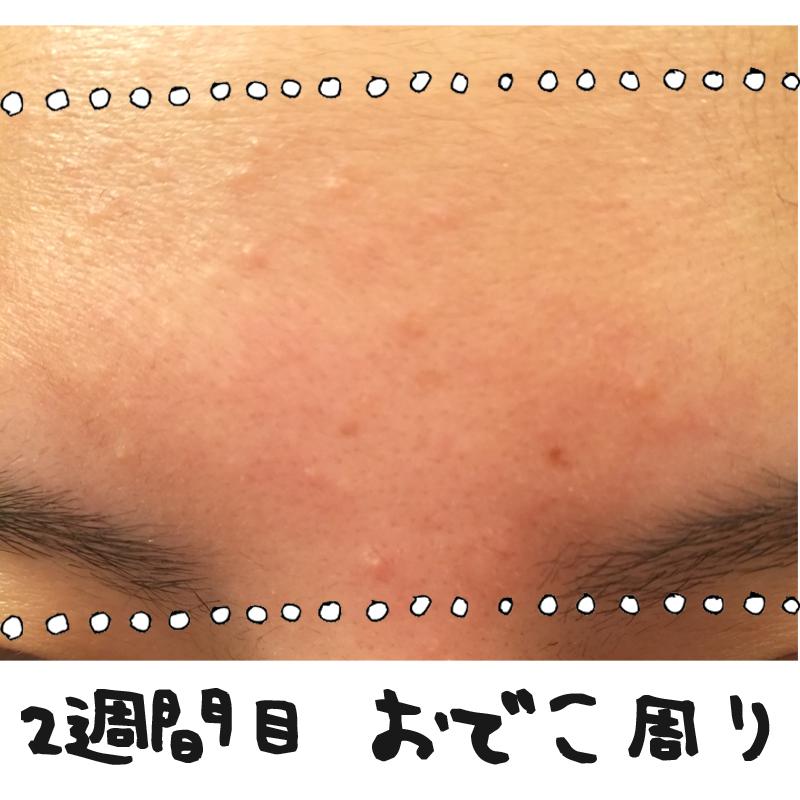 f:id:shinchouhikui_joshi:20170203140250j:plain