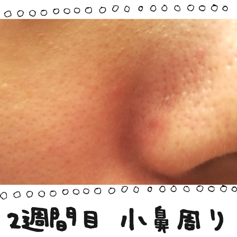 f:id:shinchouhikui_joshi:20170203140251j:plain