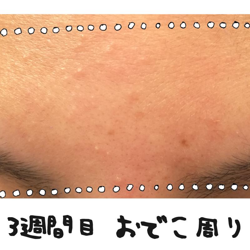 f:id:shinchouhikui_joshi:20170203140252j:plain