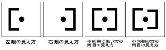 f:id:shinjyojimichiru:20160315174704j:plain