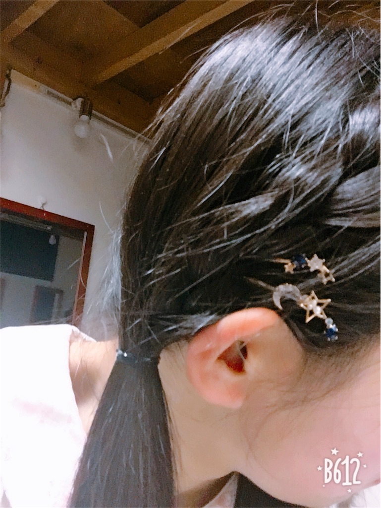 f:id:shinonomesana_job_voiceandmus436:20180531064523j:image