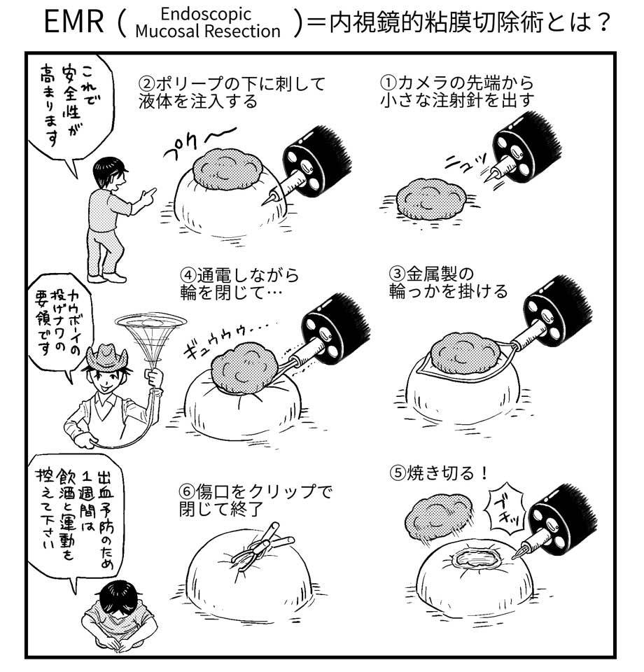 f:id:shintarok:20170605211104j:plain