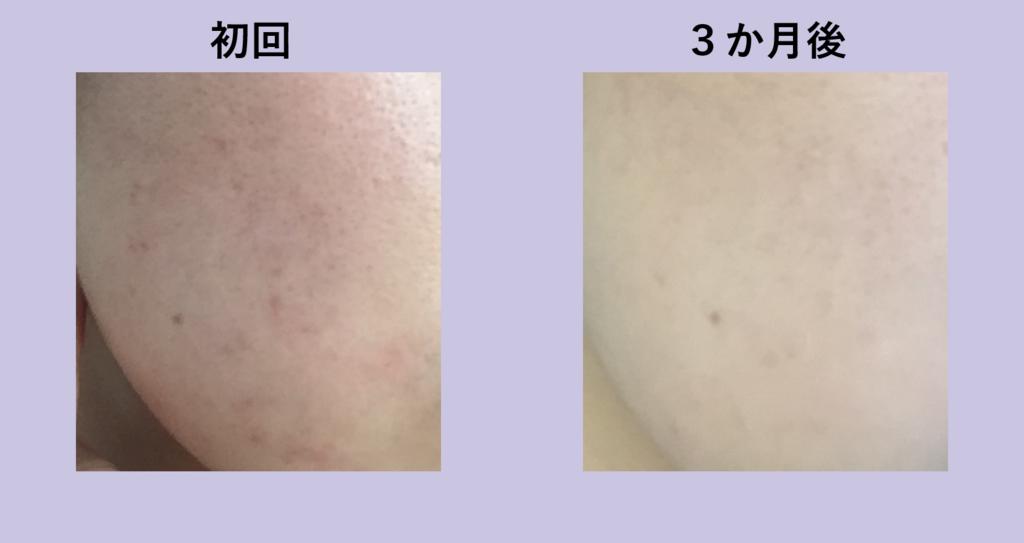 f:id:shinya-no-ringosawagi:20180311105824p:plain