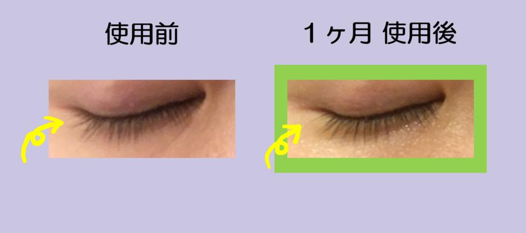f:id:shinya-no-ringosawagi:20180317155232p:plain