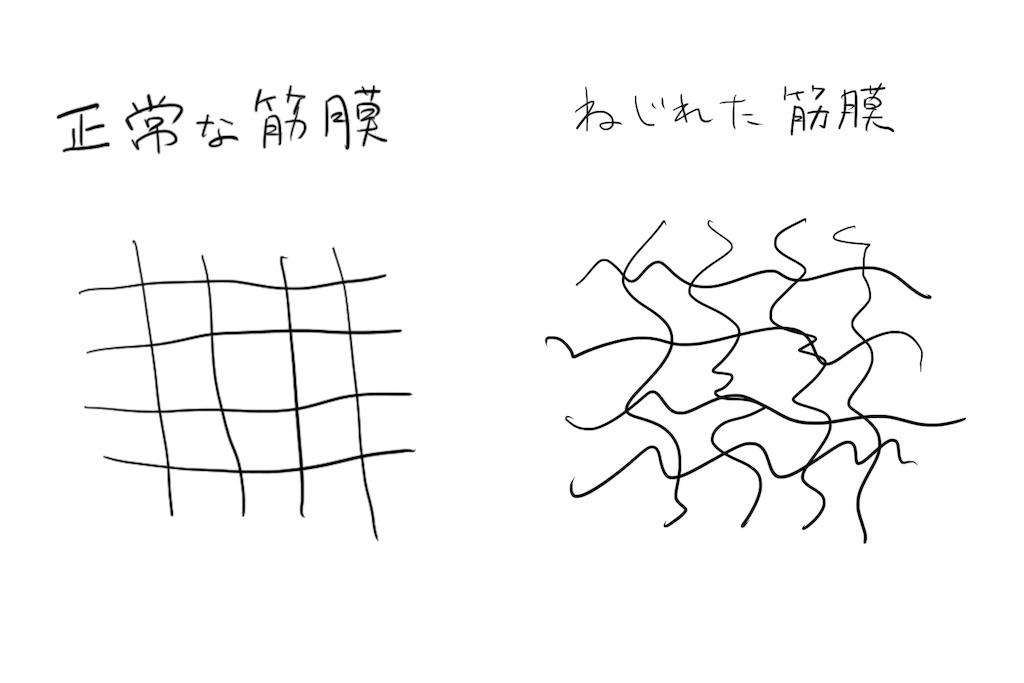 f:id:shionmurasaki:20181124203253j:plain:w500