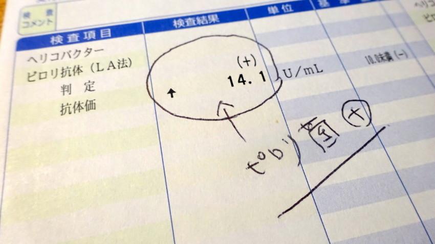 f:id:shioshiohida:20180626103323j:plain