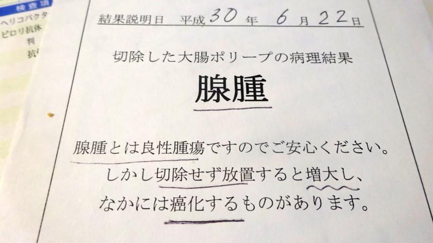 f:id:shioshiohida:20180626103333j:plain