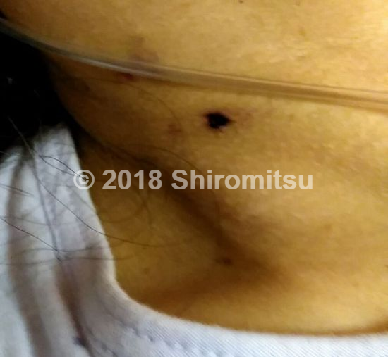 f:id:shiramitsu:20180524011105p:plain