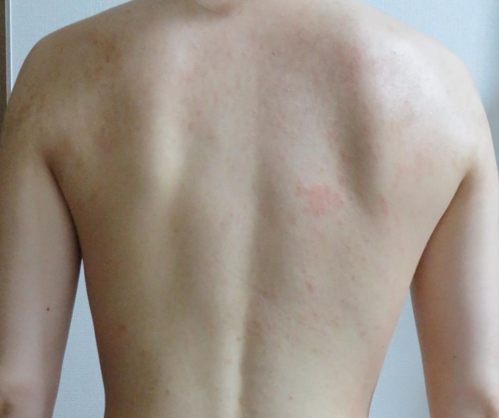 f:id:shirogreen:20170704140747j:plain