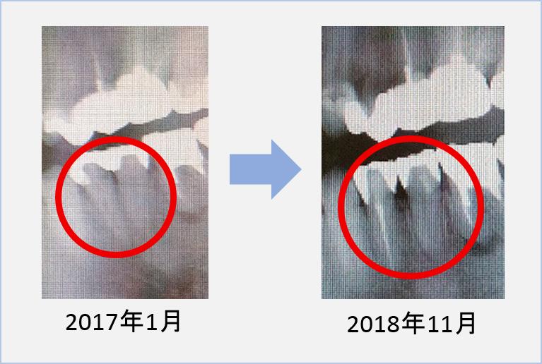 f:id:shirokurox:20181209114135p:plain