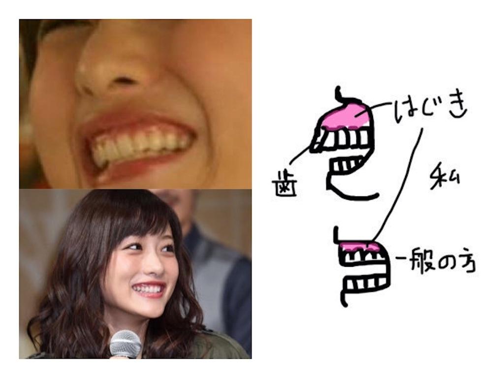 f:id:shiwasuke1212:20190407161747j:image