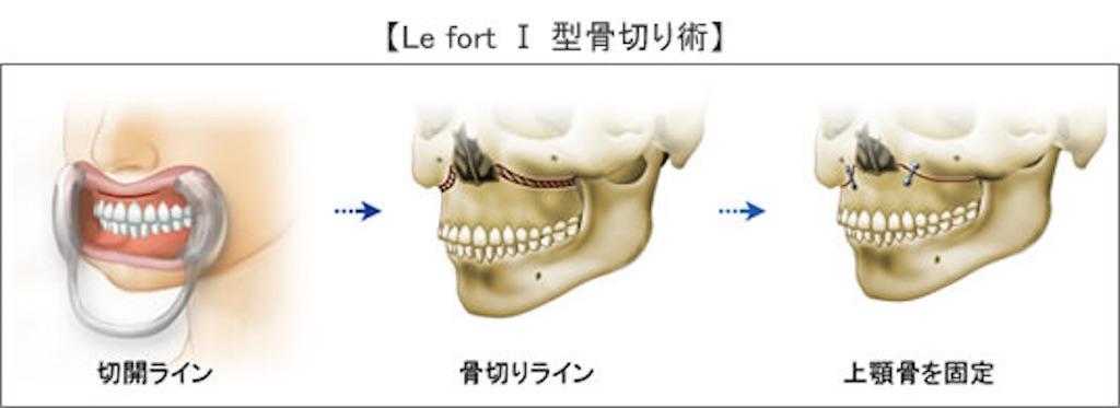 f:id:shiwasuke1212:20190425140540j:image