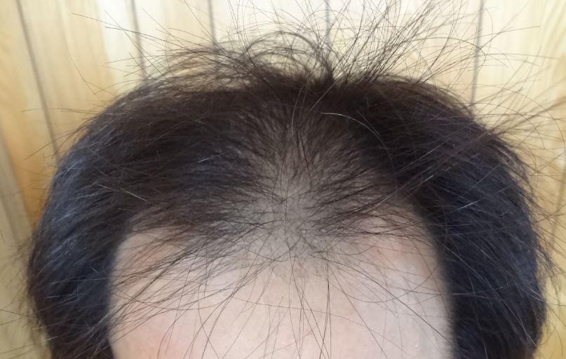先週の頭髪画像