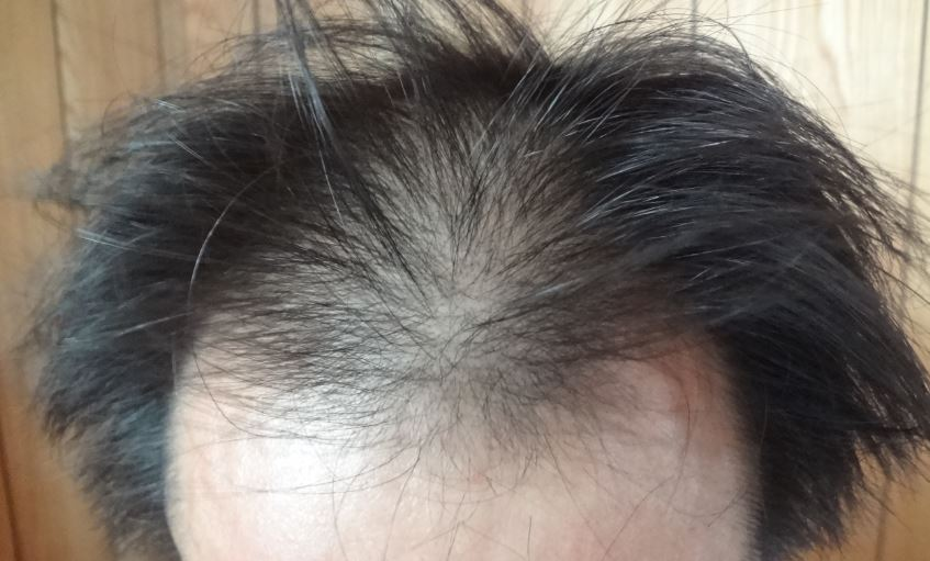 マーロ薬用デオスカルプシャンプーで洗髪した生え際