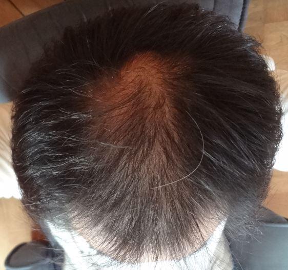 クリアフォーメンで洗った頭頂部