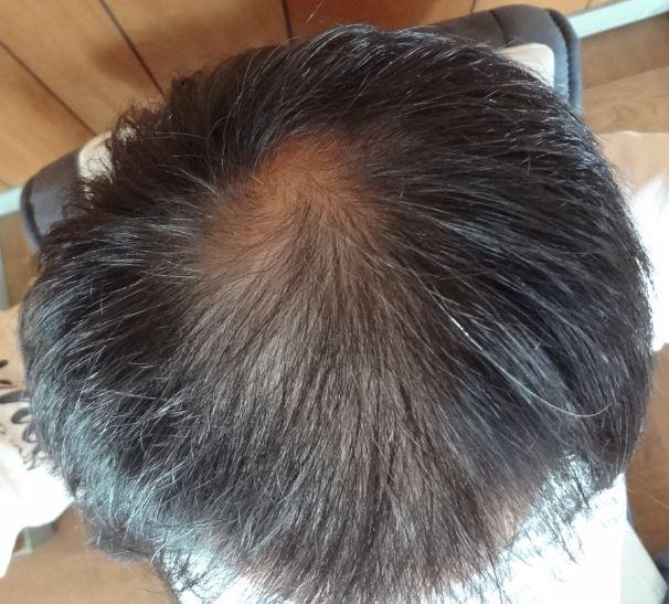 2017.09.30の頭頂部