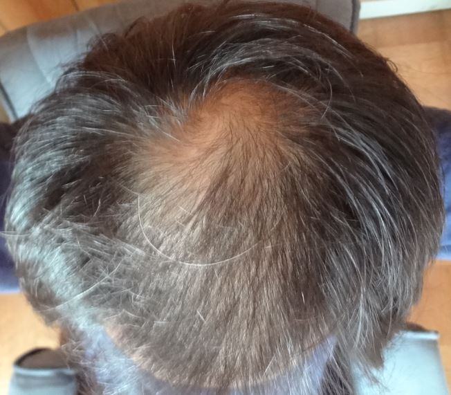 20171015の頭頂部