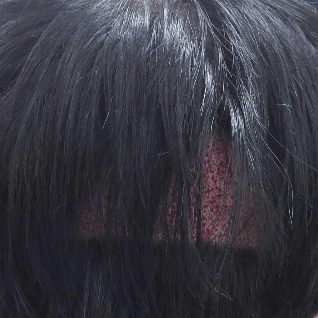 f:id:shokumou:20190208181047j:plain