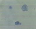 膀胱上皮細胞(銀目)