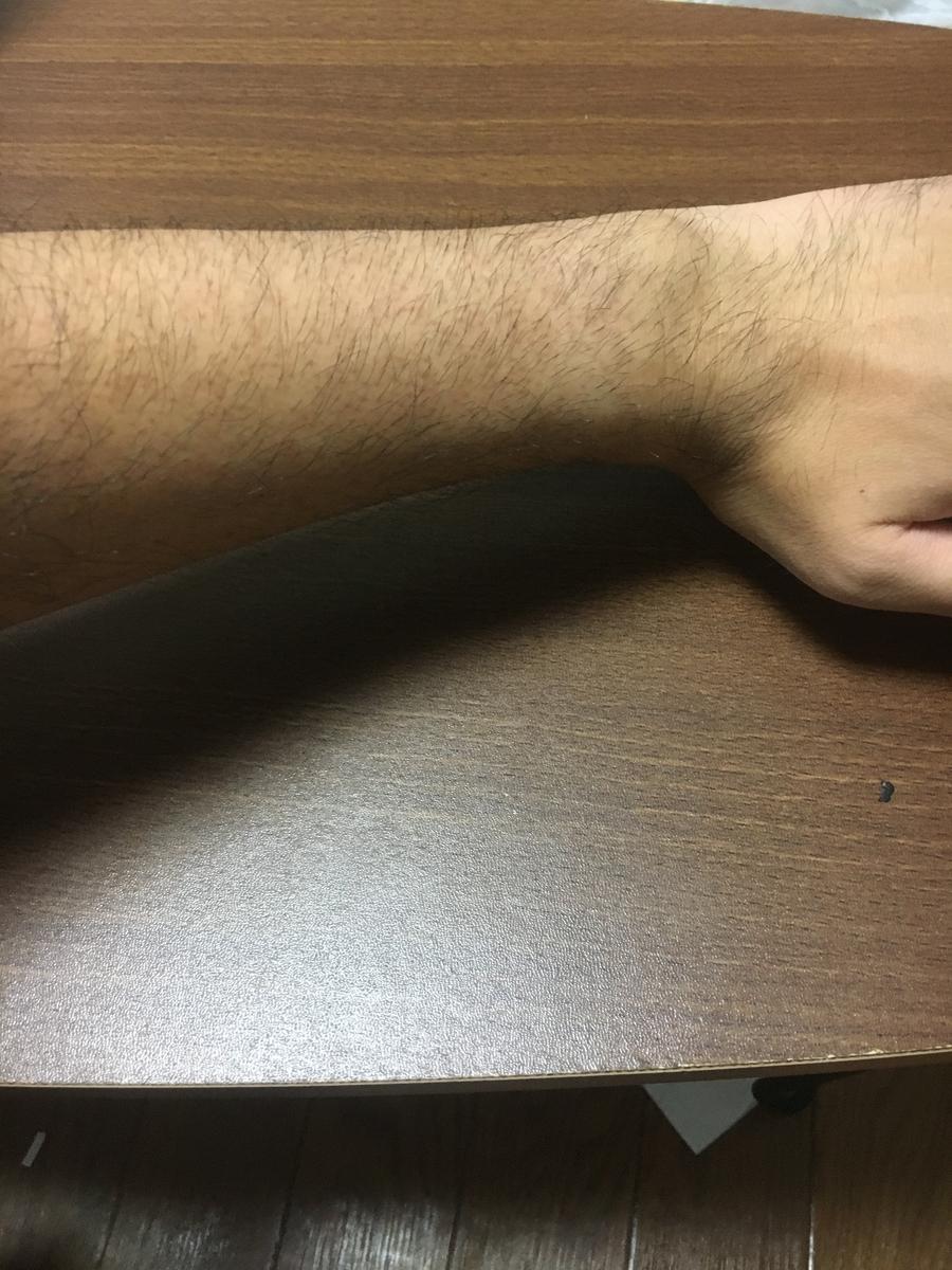 腕周り15センチの私の腕です。