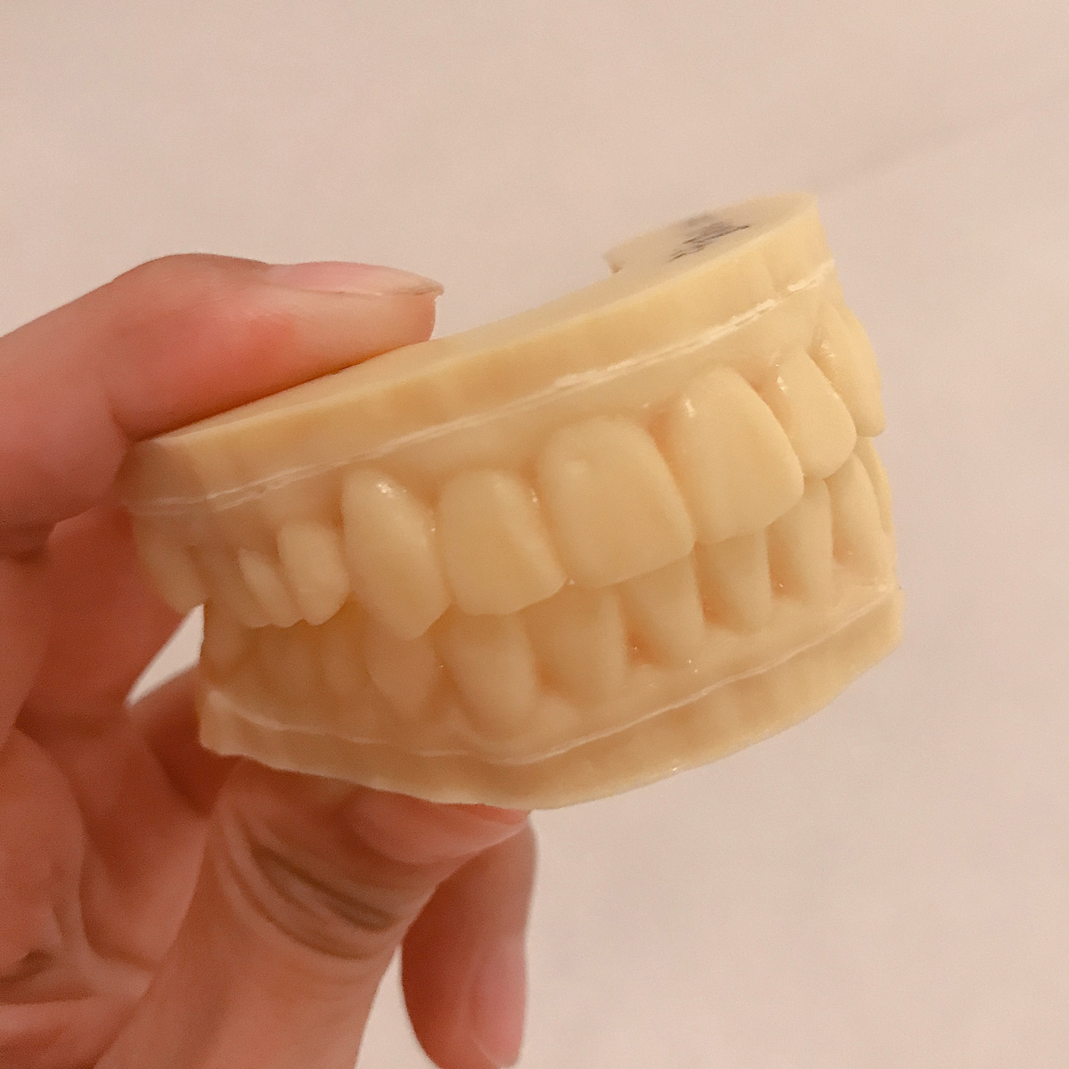 今回の歯型の見本