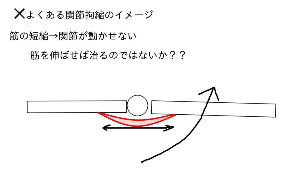 f:id:sinka-body:20170315131428j:plain