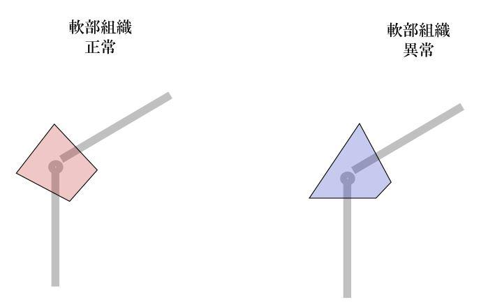 f:id:sinka-body:20200708224021j:plain