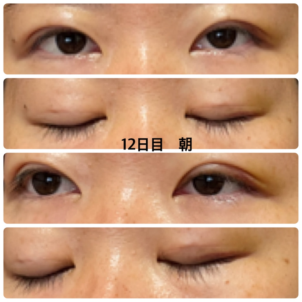 f:id:sisyamozuzu:20210807091908j:image