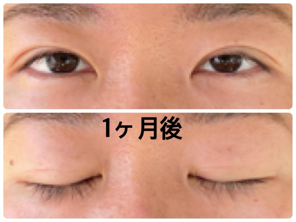 f:id:sisyamozuzu:20210901190827j:image