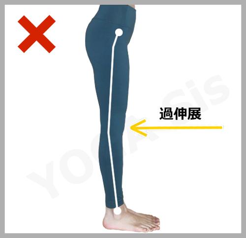 膝の過伸展|滋賀県野洲市 YOGAサロン Sis