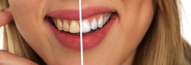 歯がヤニで汚れなくなる