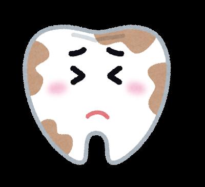 歯に汚れがつきやすい人
