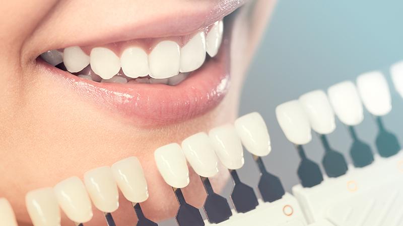 自然な白い歯|真っ白にはなりません