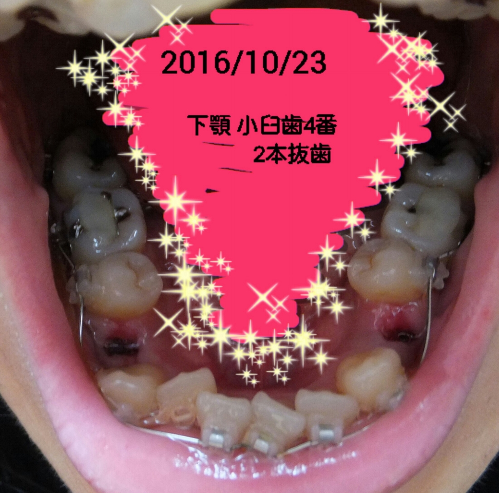 f:id:smileikura:20161027234209j:plain