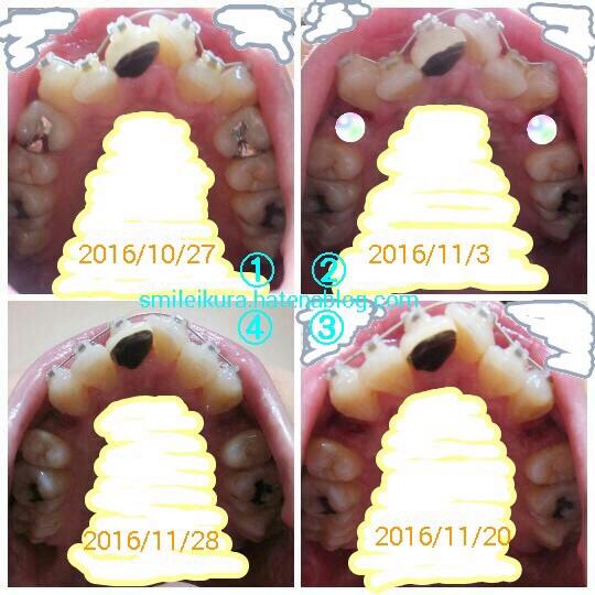 f:id:smileikura:20161203163828j:plain