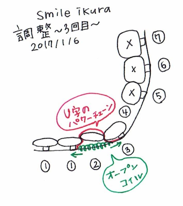 f:id:smileikura:20170107165721j:plain